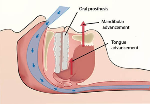 Oral snoring devices