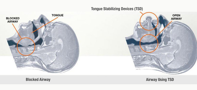 Tongue Stabilizing Device  (TSD Mouthpiece) - How it works