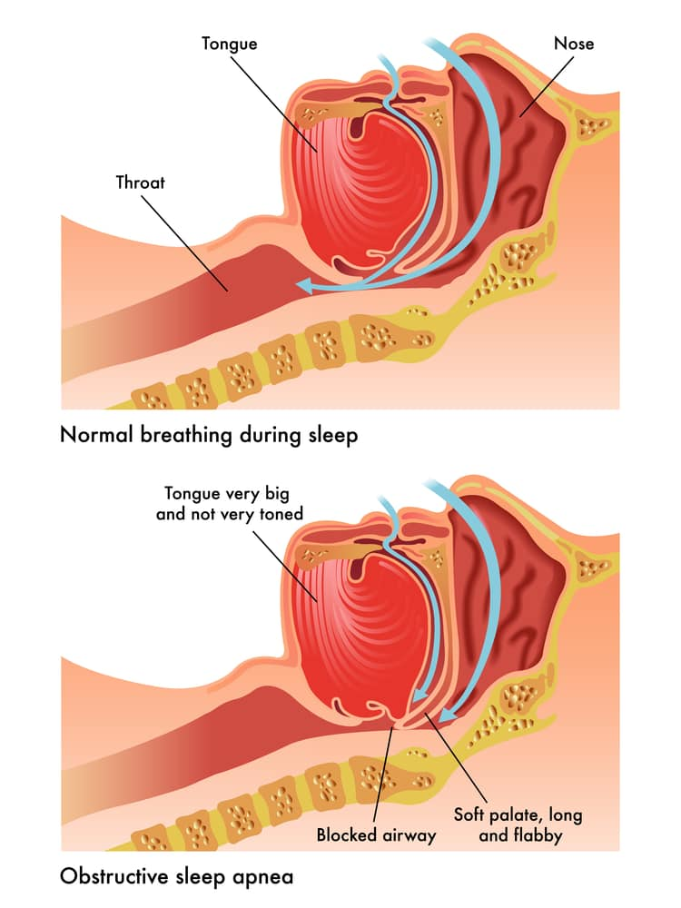 Obstructive Sleep Apnea Explained