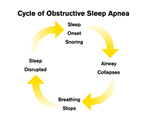cycle of obstructive sleep apnea diagram